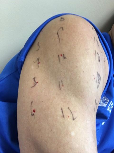 Allergy skin tests