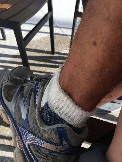 skin spot on leg